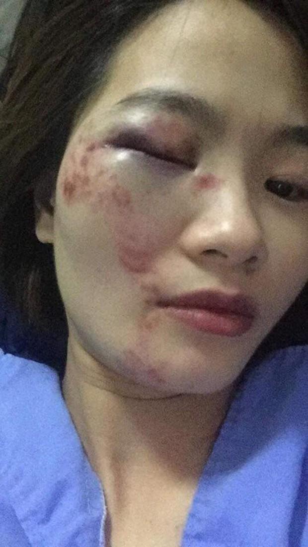 Hà Nội: Nữ nhân viên xe buýt tố bị nhóm thanh niên hành hung vào đúng ngày 20/10, phải nhập viện cấp cứu - Ảnh 3.
