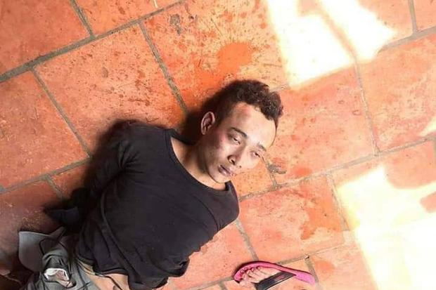 Thanh niên nghi ngáo đá sát hại, cắn đứt bộ phận cơ thể cụ ông 84 tuổi ở Bình Dương đã chết vì sốc thuốc - Ảnh 1.