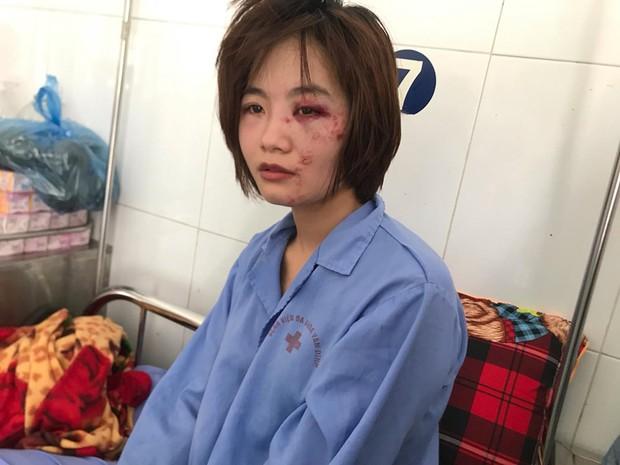 Xác định được danh tính, tổ chức truy bắt nhóm thanh niên hành hung nữ phụ xe buýt ở Hà Nội - Ảnh 1.