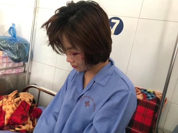 Nữ phụ xe buýt sợ hãi và tổn thương sau khi bị đánh hội đồng đến nhập viện: Bọn họ xuống xe còn bảo đánh thế vẫn còn nhẹ - Ảnh 4.