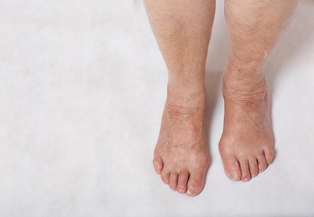 Loạt biểu hiện lạ trên cơ thể cảnh báo những căn bệnh nghiêm trọng mà bạn không nên bỏ qua - Ảnh 4.