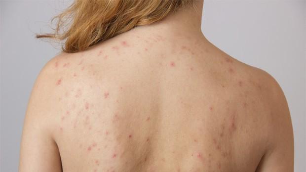 Lưng mọc nhiều mụn có thể là biểu hiện của 4 vấn đề sức khỏe sau - Ảnh 2.