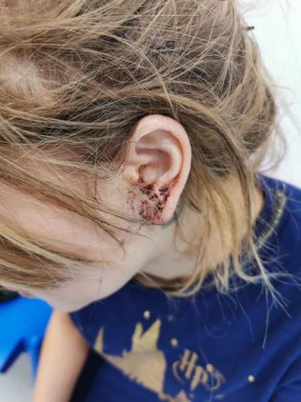 Đi bar chơi với bạn, người mẫu 16 tuổi bị đánh đến chấn thương đầu, bật cả móng tay chỉ vì quá xinh đẹp - Ảnh 2.