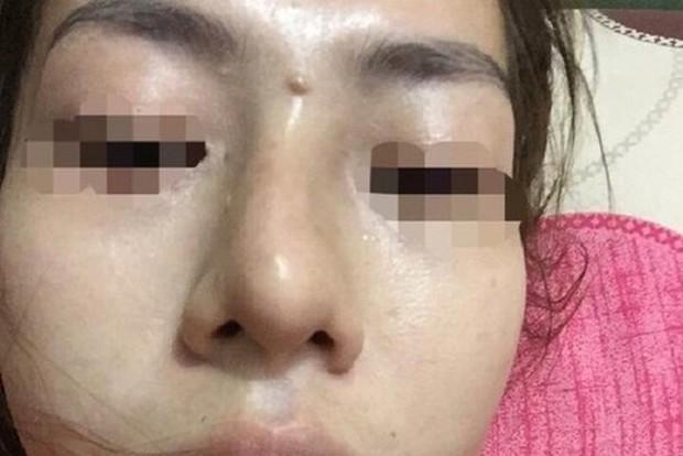 Yên Bái: Bé gái 13 tuổi bị mù sau khi giấu mẹ đi nâng mũi trả góp - Ảnh 1.