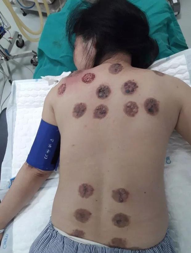 Giác hơi trị mỏi vai gáy, người phụ nữ bị hoại tử cả mảng lưng - Ảnh 1.