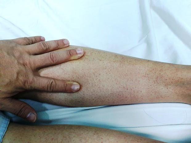 Số ca mắc sốt xuất huyết gia tăng và có xu hướng nặng: Cảnh báo chu kỳ của đỉnh dịch vào tháng 10 và 11 - Ảnh 1.