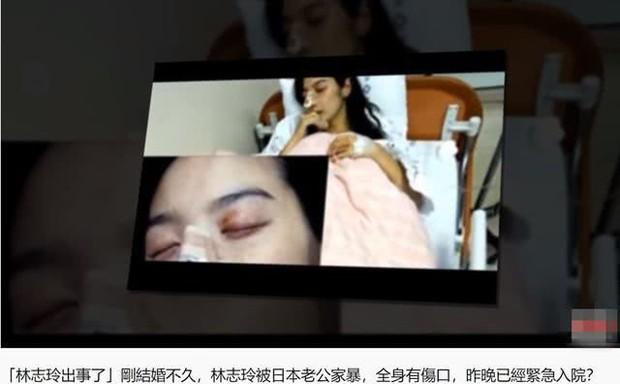 Rộ tin Lâm Chí Linh lấy chồng được 4 tháng đã bị đánh đến mức nhập viện và sự thật đằng sau - Ảnh 1.
