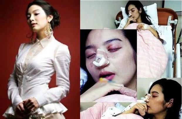 Rộ tin Lâm Chí Linh lấy chồng được 4 tháng đã bị đánh đến mức nhập viện và sự thật đằng sau - Ảnh 4.