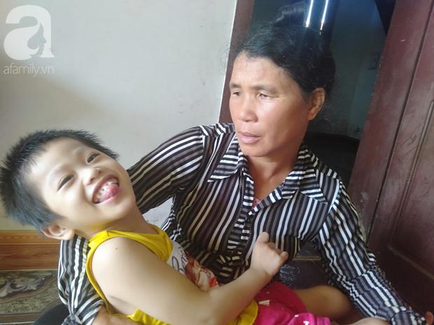 Bi kịch cha mẹ ly hôn vì sinh con tật nguyền, bé gái 5 tuổi bị bại não sống côi cút bên bà nội già yếu - Ảnh 9.