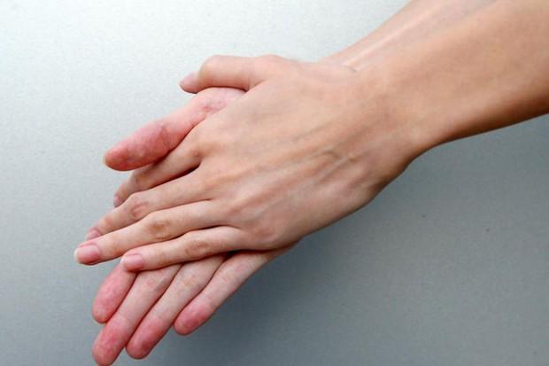 10 dấu hiệu của móng tay cho thấy sức khỏe của bạn đang có vấn đề - Ảnh 1.