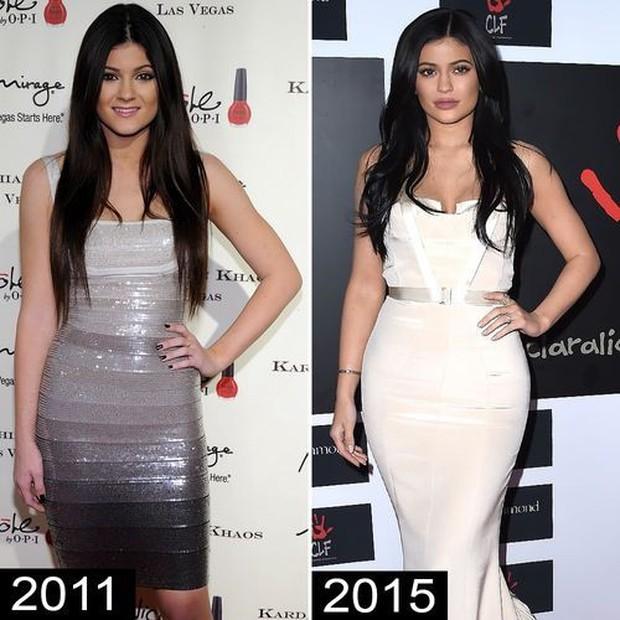 Chị em Kendall và Kylie Jenner lâu lắm mới đọ body trực diện, so với ảnh quá khứ đúng là một trời một vực - Ảnh 5.