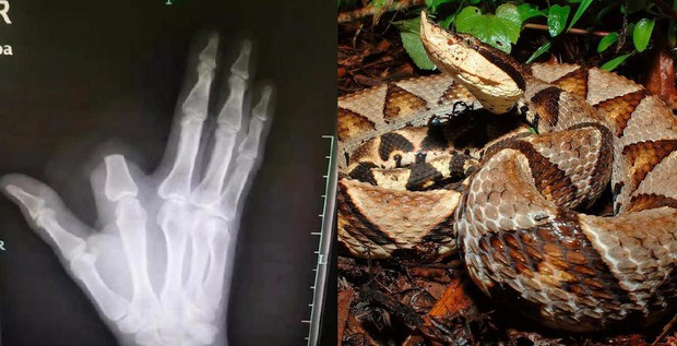Bị rắn cắn, bác nông dân nhanh nhảu chặt phăng ngón tay nhưng đến bệnh viện thì bác sĩ bảo không cần - Ảnh 1.