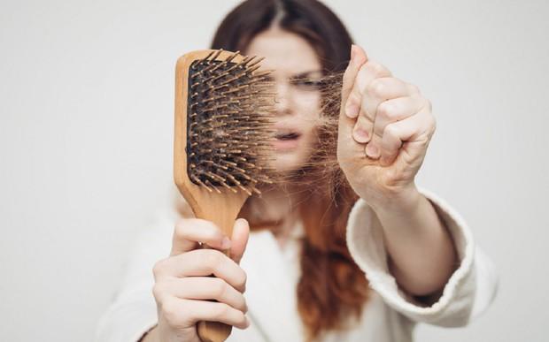 9 nguyên nhân không ngờ có thể dẫn đến rụng tóc, ảnh hưởng lớn tới diện mạo của bạn - Ảnh 4.