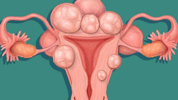 Người phụ nữ ở Trung Quốc bỏ qua những dấu hiệu lạ trong kỳ kinh nguyệt, đi khám mới biết mình đang có 68 khối u xơ tử cung - Ảnh 1.
