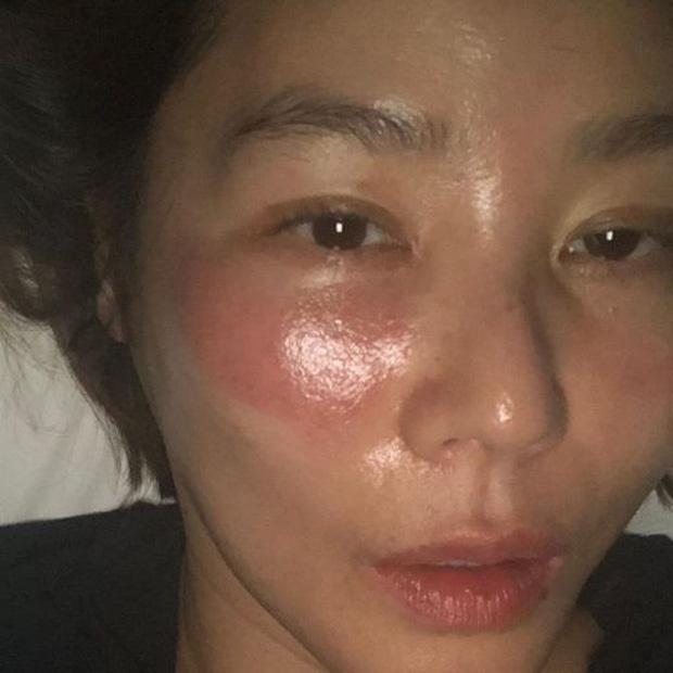 Phát hoảng mẹ Kim Tan bị hằn 2 vệt rát đỏ to trên mặt vì... thói quen đắp mặt nạ nhiều người mắc phải - Ảnh 1.