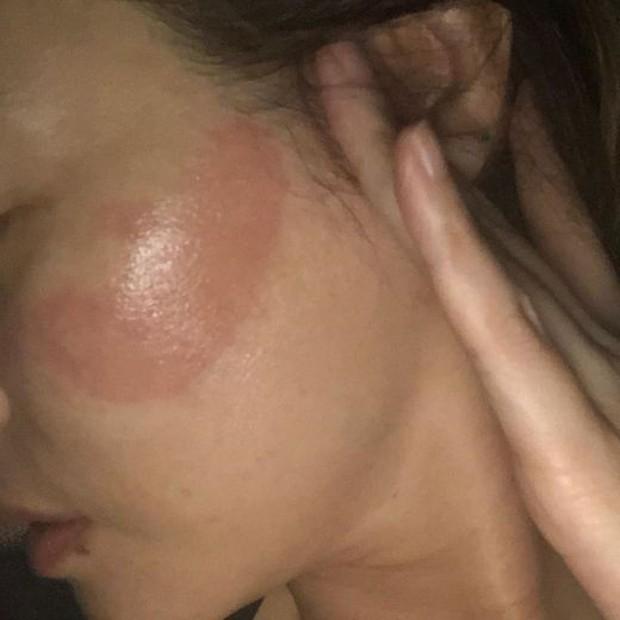 Phát hoảng mẹ Kim Tan bị hằn 2 vệt rát đỏ to trên mặt vì... thói quen đắp mặt nạ nhiều người mắc phải - Ảnh 2.