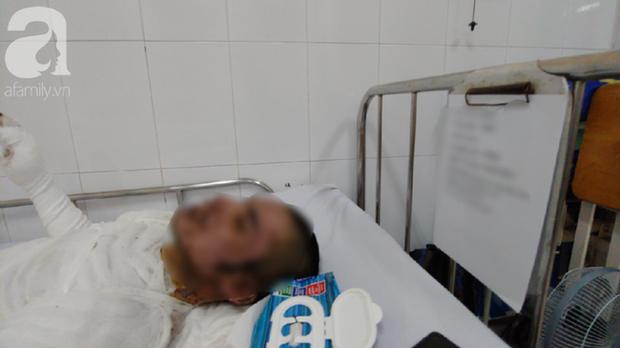Bị vợ đuổi khỏi nhà, người chồng 23 tuổi quẫn trí mua xăng về tự thiêu khiến cơ thể bỏng nặng - Ảnh 3.