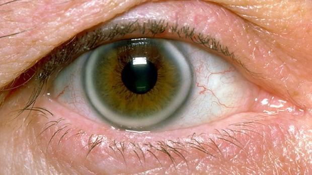 Chuyên gia hé lộ 7 dấu hiệu lạ trên mắt cảnh báo những vấn đề sức khỏe không thể xem thường - Ảnh 1.