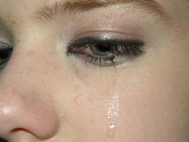 Chuyên gia hé lộ 7 dấu hiệu lạ trên mắt cảnh báo những vấn đề sức khỏe không thể xem thường - Ảnh 2.