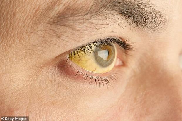 Chuyên gia hé lộ 7 dấu hiệu lạ trên mắt cảnh báo những vấn đề sức khỏe không thể xem thường - Ảnh 4.