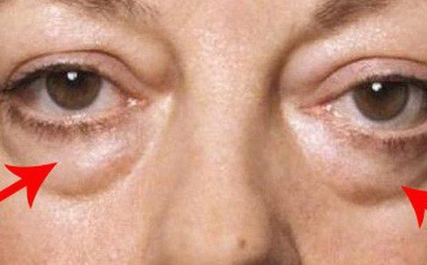 Chuyên gia hé lộ 7 dấu hiệu lạ trên mắt cảnh báo những vấn đề sức khỏe không thể xem thường - Ảnh 6.