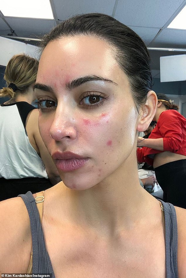 Hãy gọi thánh phông bạt Kim Kardashian là thánh mặt mộc Hollywood: Đường nét như tạc lấn át cả vẩy nến loang lổ - Ảnh 5.