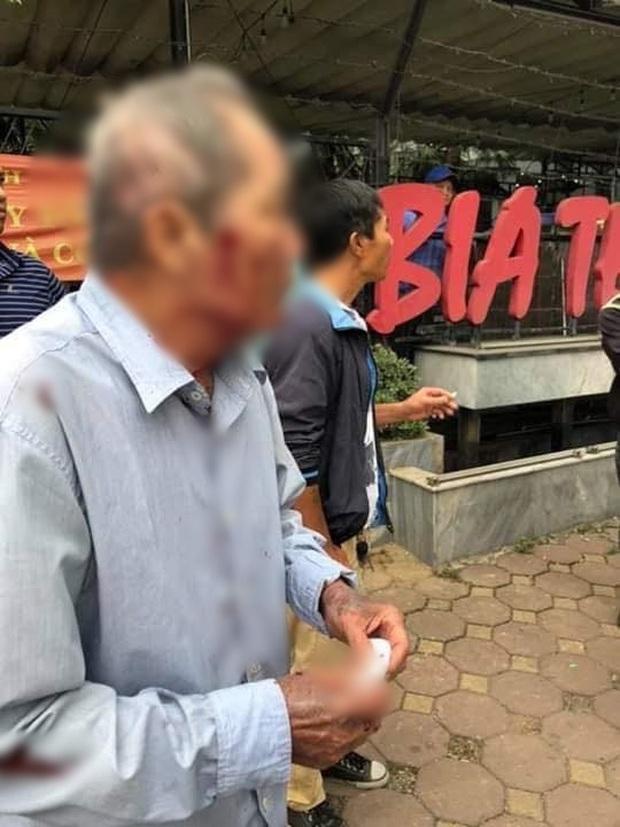 Hà Nội: Cụ ông 80 tuổi bị người đàn ông chạy xe ôm hành hung vì tranh giành địa bàn - Ảnh 1.