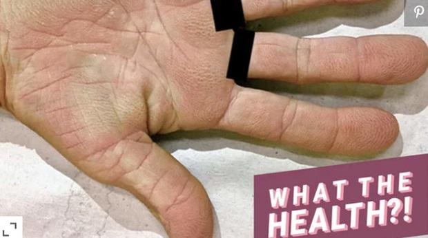 Tay nổi vân lòng bò: dấu hiệu lạ ở bàn tay cảnh báo nguy cơ mắc bệnh ung thư phổi mà bạn không nên coi thường - Ảnh 1.
