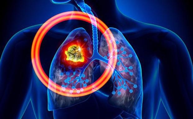 Tay nổi vân lòng bò: dấu hiệu lạ ở bàn tay cảnh báo nguy cơ mắc bệnh ung thư phổi mà bạn không nên coi thường - Ảnh 2.