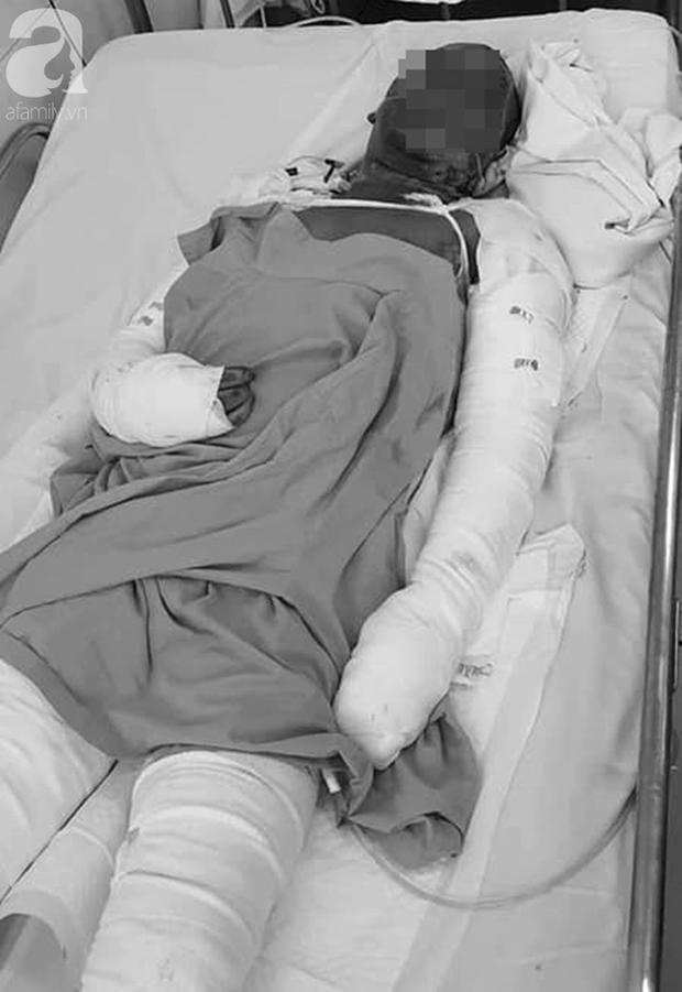 Nhà bốc cháy lúc đang ngủ, hai vợ chồng ở Lâm Đồng chỉ kịp cứu 3 con rồi hóa thành ngọn đuốc sống - Ảnh 2.
