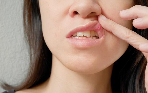 4 dấu hiệu loét miệng ngầm cảnh báo bệnh ung thư miệng đang âm thầm phát triển - Ảnh 3.