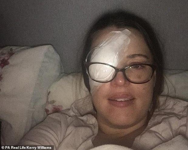 Thấy nhiều đốm trắng nhấp nháy trong phòng ngủ, cô gái người Anh đi khám không ngờ mình mắc bệnh ung thư mắt - Ảnh 3.