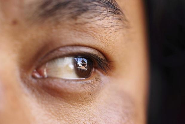 Thấy nhiều đốm trắng nhấp nháy trong phòng ngủ, cô gái người Anh đi khám không ngờ mình mắc bệnh ung thư mắt - Ảnh 5.