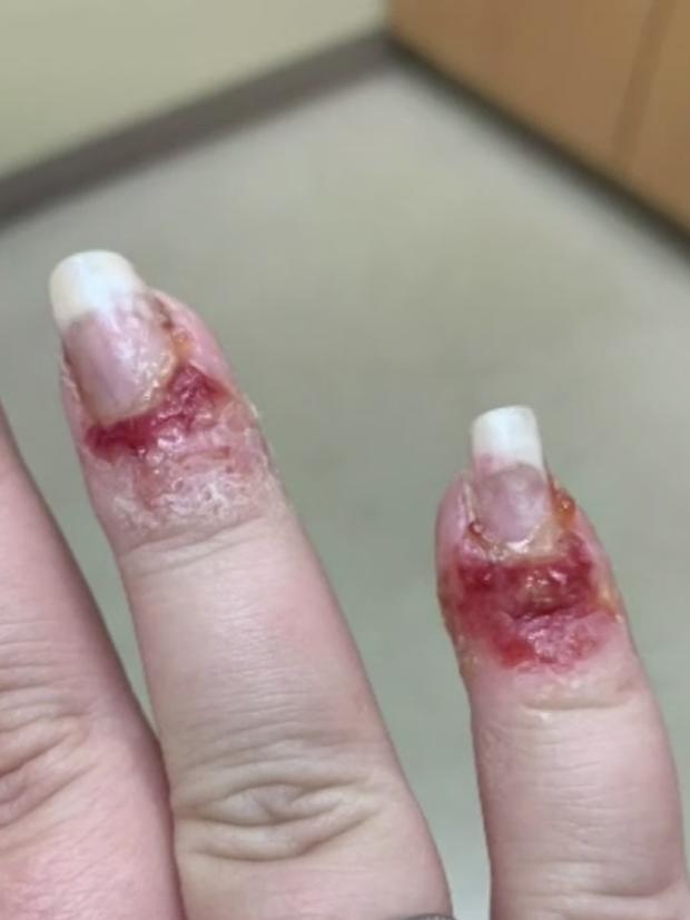 Sơn móng tay bằng bột nhúng nails, cô gái bị chảy máu, mưng mủ kinh hoàng - Ảnh 1.
