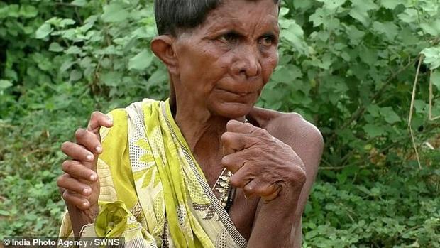 Sở hữu 12 ngón tay, 19 ngón chân do dị tật bẩm sinh, người phụ nữ phải trốn chui trốn lủi trong nhà vì bị đồn là phù thủy  - Ảnh 2.