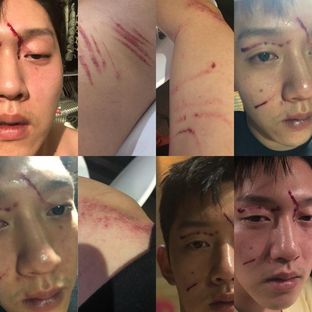 Trào nước mắt cuộc đời Goo Hara: Hồi bé bị bạn học hành hung vì quá xinh, lớn lên bị bạn trai đánh đến chảy máu tử cung - Ảnh 7.