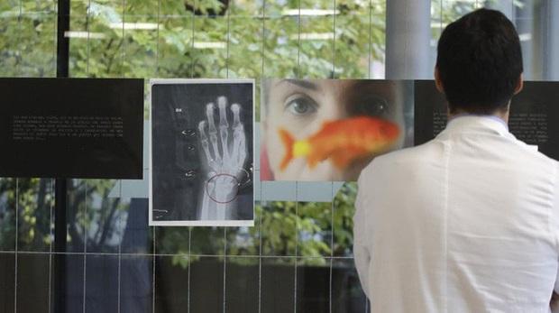 Triển lãm ảnh chụp X-quang về vấn nạn bạo lực gia đình tại Italy - Ảnh 1.