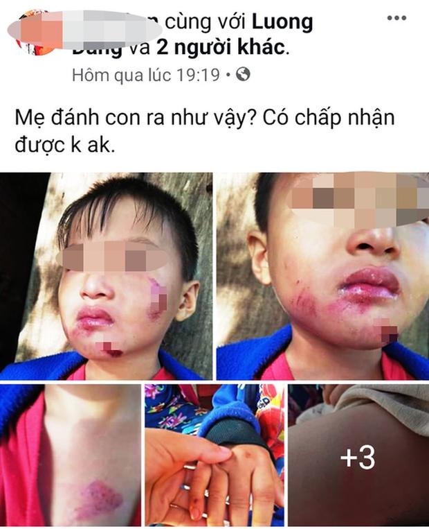 Một cháu bé 6 tuổi nghi bị chính mẹ ruột đánh dã man - Ảnh 2.