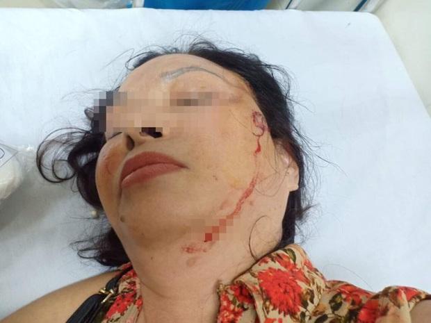 Nghi án người phụ nữ bị chồng cũ bạo hành, doạ giết cả gia đình trong suốt nhiều năm - Ảnh 2.