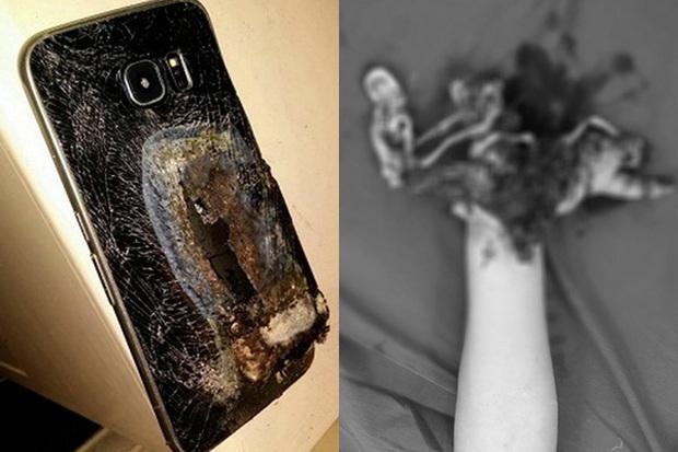 Vừa dùng vừa sạc điện thoại, nam thanh niên 16 tuổi nát tay phải cắt cụt - Ảnh 1.