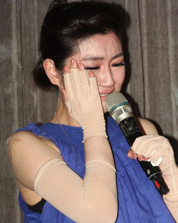 Tai nạn thương tâm trong giới Cbiz: Cao Dĩ Tường đột tử, Selina suýt bỏ mạng, Du Hạo Minh mất cả sự nghiệp - Ảnh 3.