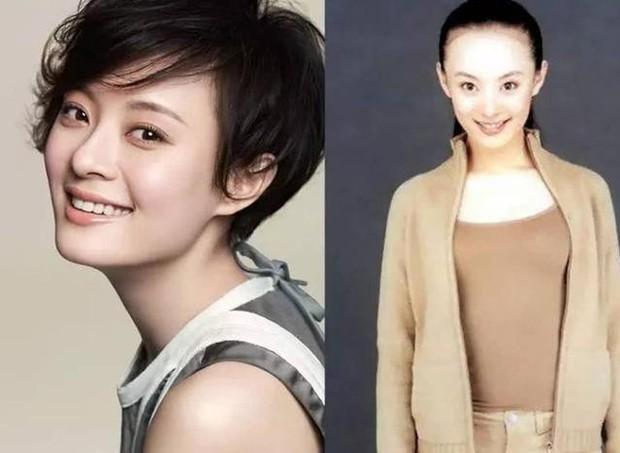Vấn nạn rụng tóc của minh tinh showbiz: Dương Mịch - Angela Baby lộ trán hói, sao nam đáng lo ngại chẳng kém - Ảnh 12.