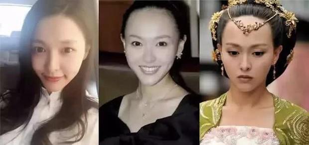Vấn nạn rụng tóc của minh tinh showbiz: Dương Mịch - Angela Baby lộ trán hói, sao nam đáng lo ngại chẳng kém - Ảnh 13.