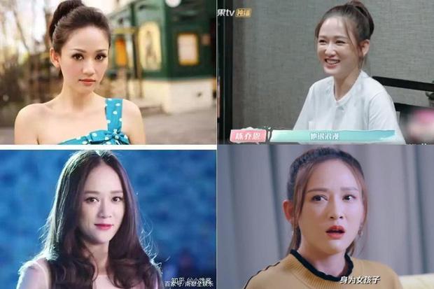 Vấn nạn rụng tóc của minh tinh showbiz: Dương Mịch - Angela Baby lộ trán hói, sao nam đáng lo ngại chẳng kém - Ảnh 18.