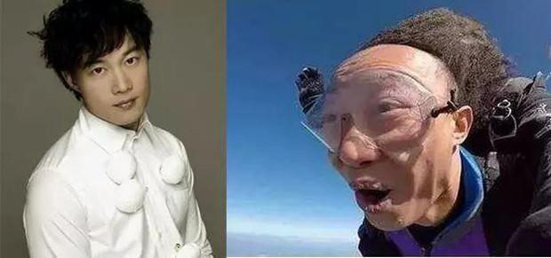 Vấn nạn rụng tóc của minh tinh showbiz: Dương Mịch - Angela Baby lộ trán hói, sao nam đáng lo ngại chẳng kém - Ảnh 26.