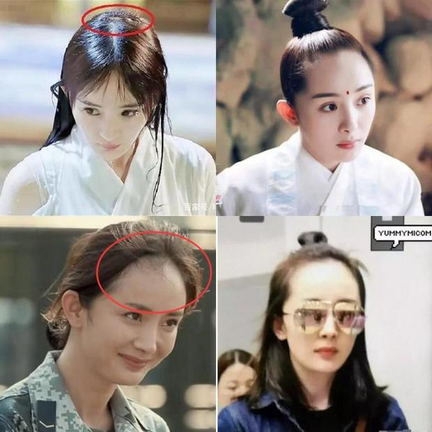 Vấn nạn rụng tóc của minh tinh showbiz: Dương Mịch - Angela Baby lộ trán hói, sao nam đáng lo ngại chẳng kém - Ảnh 7.