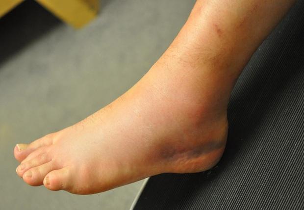 Cẩn thận với 4 dấu hiệu ở chân cảnh báo căn bệnh dễ gây đột tử rất nhanh - Ảnh 3.