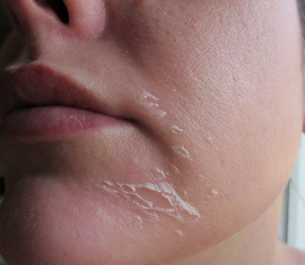 Vì sao cứ chuyển mùa, nhất là trong tiết trời hanh khô là da mặt lại tróc đầy vảy trắng vào mỗi sáng? - Ảnh 1.