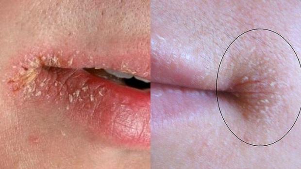 Hàng loạt nguyên nhân không ngờ khiến đôi môi của bạn khô nứt nẻ trong mùa thu hanh - Ảnh 3.