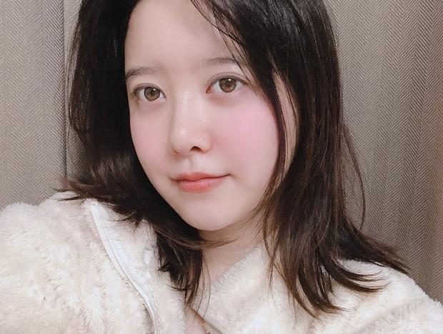 Goo Hye Sun leo lên thẳng top 2 hot nhất Naver vì hình ảnh mặt sưng vù, chuyện gì đây? - Ảnh 1.